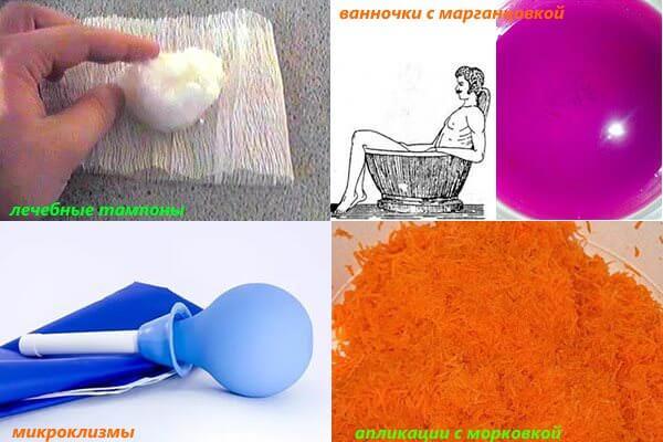 Народные методы лечения геморроя и анальной трещины