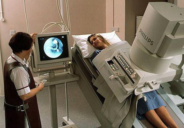 Рентгеноскопия ЖКТ