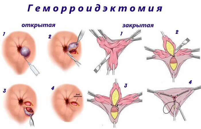 Открытая и закрытая геморроидэктомия