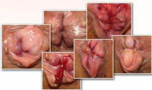Осложнения после проведения геморроидэктомии