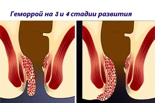 Геморроидэктомию проводят пациентам с геморроем на 3 и 4 стадии развития
