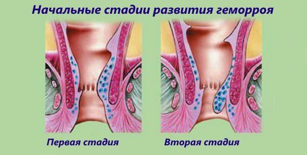 Свечи Проктозан эффективны при начальных стадиях геморроя