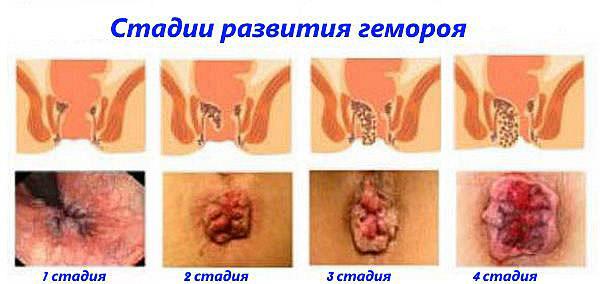Вылечить грибок между пальцев ног у ребенка