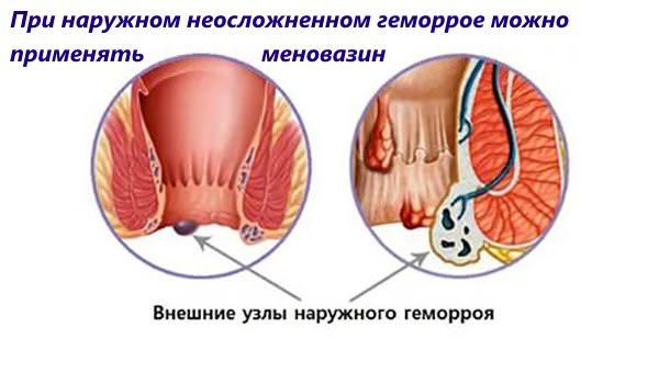 меновазин применяют при наружном неосложненном геморрое