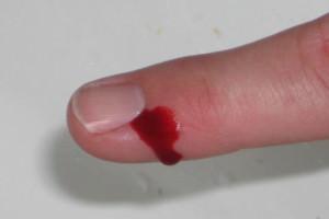 При наличии кровотечений из узлов меновазин применять нельзя