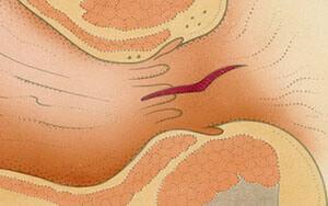 Трещина в прямой кишке - одна из причин развития парапроктита