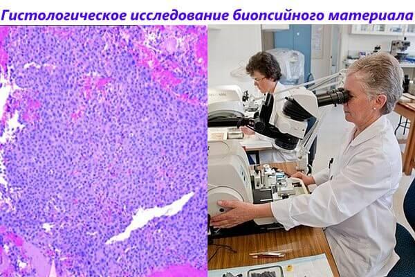 Гистологическое исследование биопсийного материала