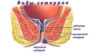 Геморрой - основная причина боли в заднем проходе