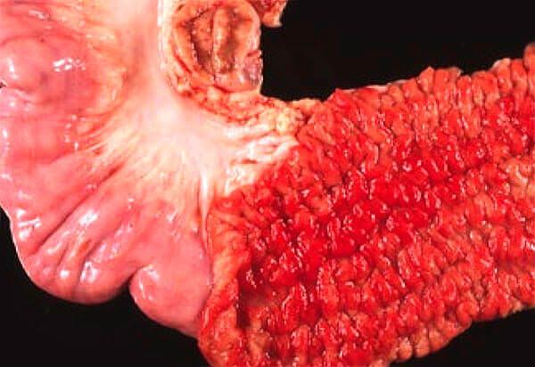 Болезнь Крона - одна из причин кровотечения из ануса