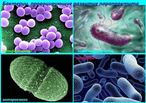 Развитие прапроктита провоцируют бактерии
