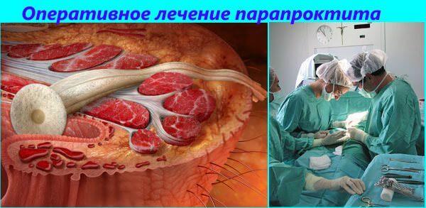 Основной метод лечения парапроктита - операция