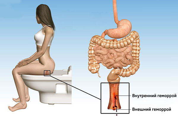 Боль причиняет воспаление гемороидальных узлов