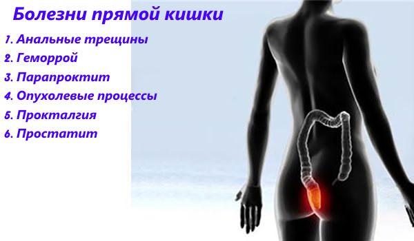 резкая боль внизу живота справа после родов