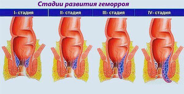 От стадии развития геморроя зависят лечебные мероприятия