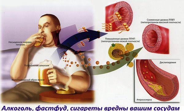 Алкоголь, фастфуд, сигареты способствуют развитию геморроя