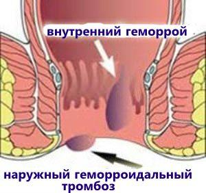 Тромбирование геморроидальных узлов