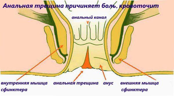 Анальная трещина причиняет боль