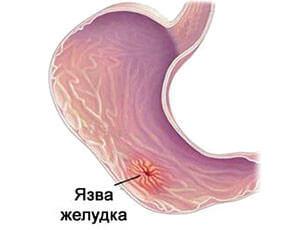 Язва желудка может привести к образованию трещины в заднем проходе
