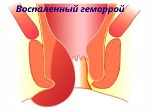 Воспаленный геморрой лечат Троксерутином