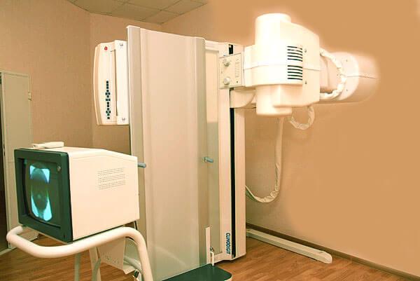 Оборудование для проведения ирригоскопии кишечника