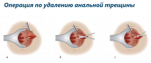 Лечение анальной трещины хирургическим способом
