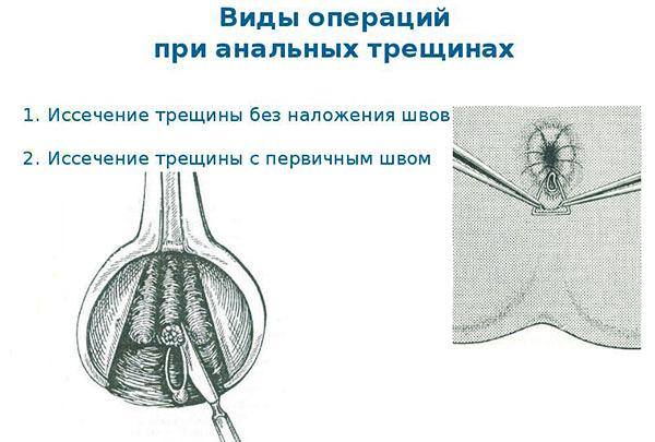 Виды операция при анальных трещинах