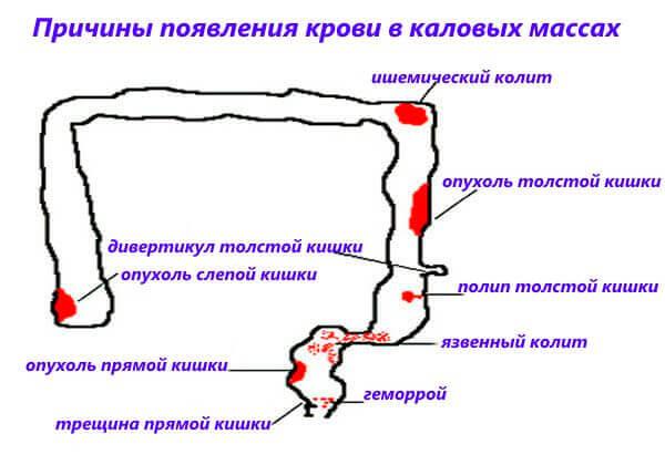 Причины появления крови в каловых массах