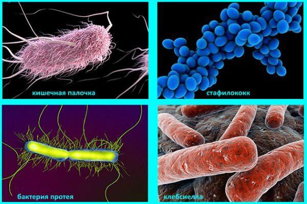 Причиной развития парапроктита становятся болезнетворные бактерии