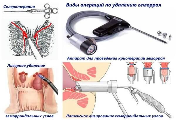 Хирургическое вмешательство как лечение геморроя