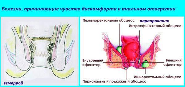 Чувство сдавленности в анальном отверстии может возникать из-за геморроя или парапроктита