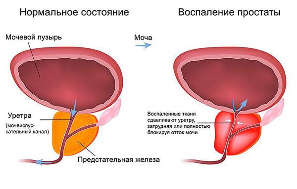 Воспаленная простата причиняет дискомфорт в прямой кишке