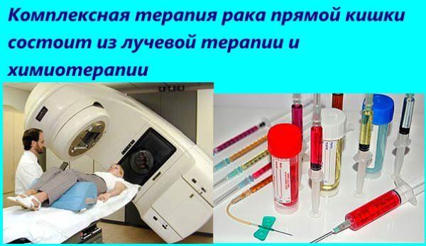 Комплексная терапия рака состоит из облучения и химиотерапии