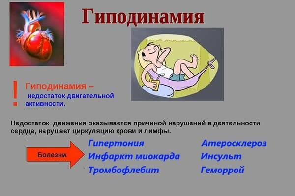 Одна из причин развития геморроя - гиподинамия