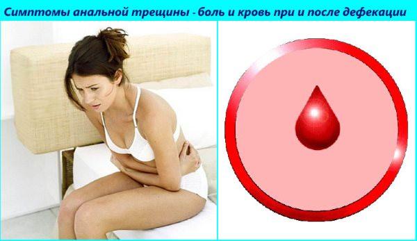 Сильная боль при и после дефекации, кровяные выделения - симптомы трещины в анусе