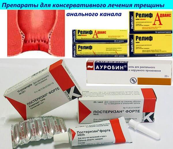 Препараты для консервативного лечения трещины