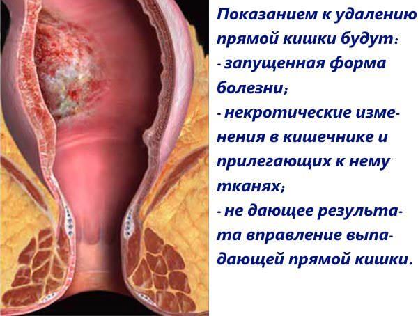 Рак толстой кишки Причины симптомы современная