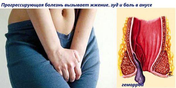 Боль, жжение, зуд в анусе - симптомы геморроя