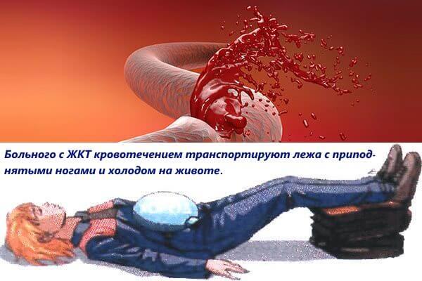 Больного с кровотечением ЖКТ транспортируют лежа с холодным компрессом на животе