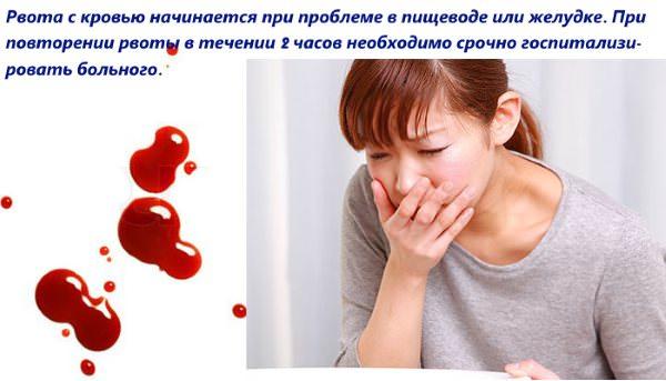 Рвота с кровью