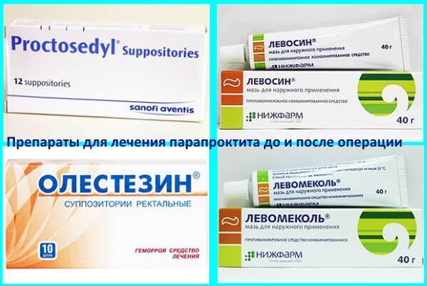 Препараты для консервативного лечения парапроктита