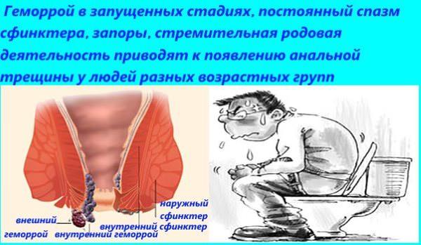 Причиной образования трещины в анусе может стать геморрой, запор