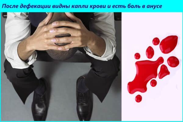 При трещине у больного появляется кровь в кале и сильные боли после дефекации