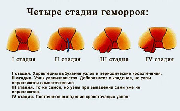 Четыре стадии геморроя
