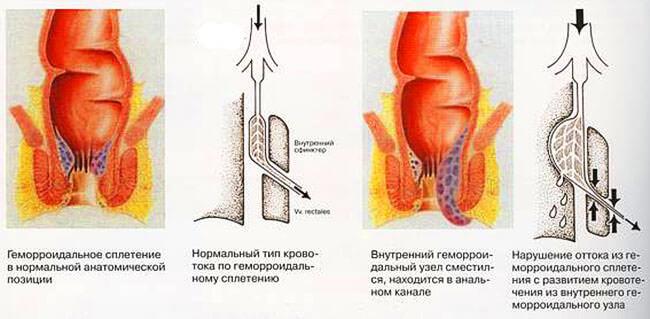 Развитие геморроя и нарушение оттока крови