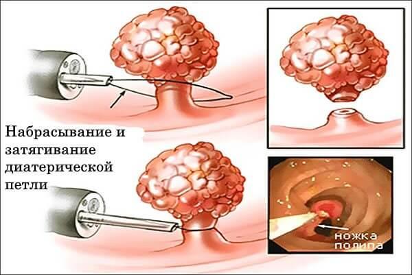 Операция по удалению полипов в кишечнике