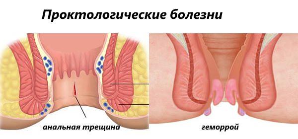 Причиной образования шарика возле ануса могут стать геморрой и анальная трещина
