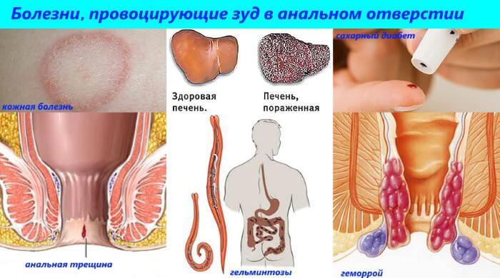 Как лечить грибки в заднем проходе