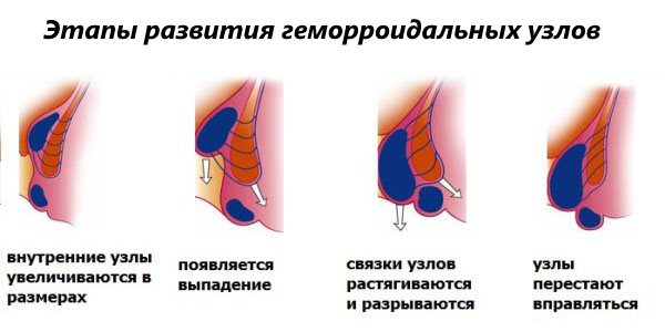Этапы развития геморроидальных узлов