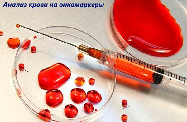 Анализ крови на онкомаркер