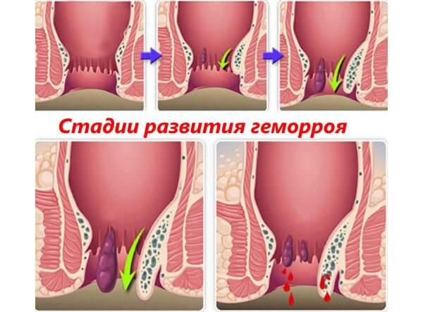Операцию назначают при поздних стадиях развития геморроя